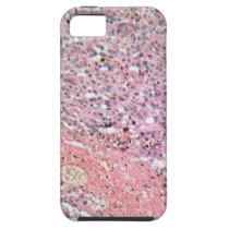 Human skin with skin cancer under a microscope. iPhone SE/5/5s case