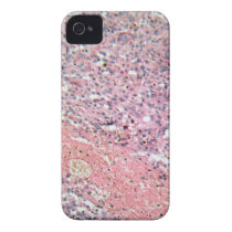 Human skin with skin cancer under a microscope. iPhone 4 case