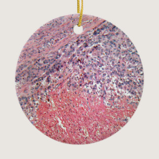 Human skin with skin cancer under a microscope. ceramic ornament