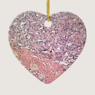 Human skin with skin cancer under a microscope. ceramic ornament