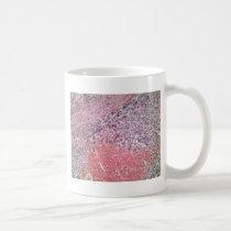 Human skin with skin cancer under a microscope. coffee mug