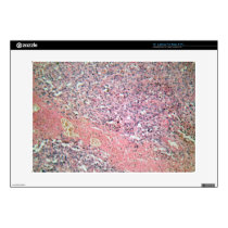 Human skin with skin cancer under a microscope. decal for laptop