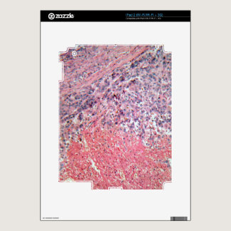 Human skin with skin cancer under a microscope. decal for the iPad 2