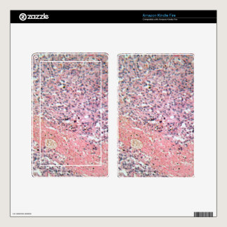 Human skin with skin cancer under a microscope. decals for kindle fire