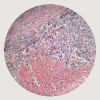 Human skin with skin cancer under a microscope. dinner plate