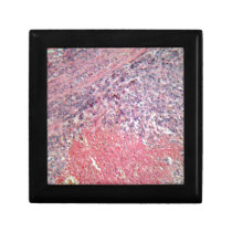 Human skin with skin cancer under a microscope. gift box