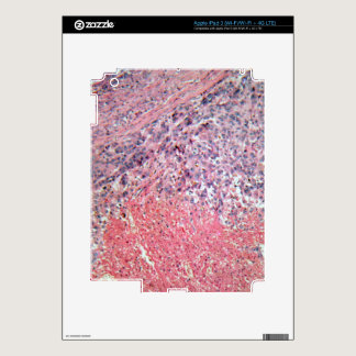 Human skin with skin cancer under a microscope. iPad 3 decals