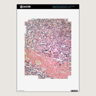 Human skin with skin cancer under a microscope. iPad 3 skins