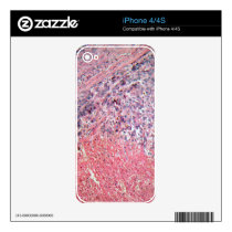Human skin with skin cancer under a microscope. iPhone 4S decals