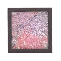Human skin with skin cancer under a microscope. keepsake box