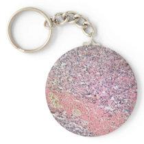 Human skin with skin cancer under a microscope. keychain