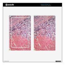 Human skin with skin cancer under a microscope. kindle fire skins