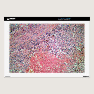 Human skin with skin cancer under a microscope. laptop skins