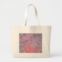 Human skin with skin cancer under a microscope. large tote bag