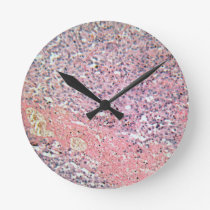 Human skin with skin cancer under a microscope. round clock