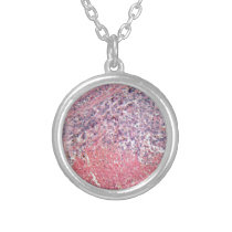 Human skin with skin cancer under a microscope. silver plated necklace