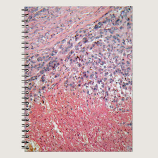 Human skin with skin cancer under a microscope. spiral notebook