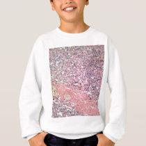 Human skin with skin cancer under a microscope. sweatshirt