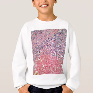 Human skin with skin cancer under a microscope. sweatshirt