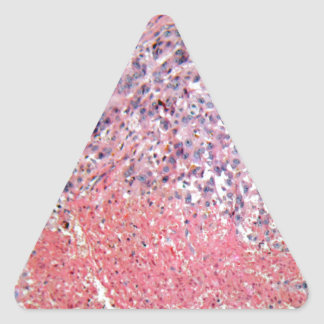 Human skin with skin cancer under a microscope. triangle sticker