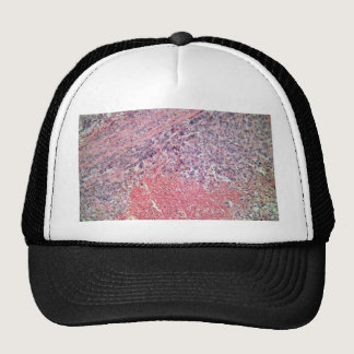 Human skin with skin cancer under a microscope. trucker hat