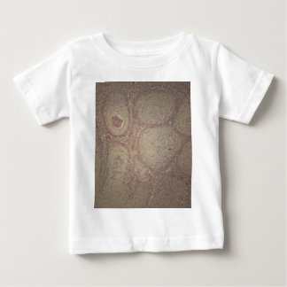 Human skin with squamous cell carcinoma baby T-Shirt