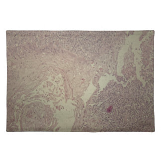 Human skin with squamous cell carcinoma cloth placemat