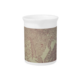 Human skin with squamous cell carcinoma drink pitcher