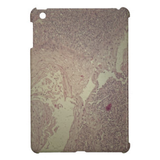 Human skin with squamous cell carcinoma iPad mini case