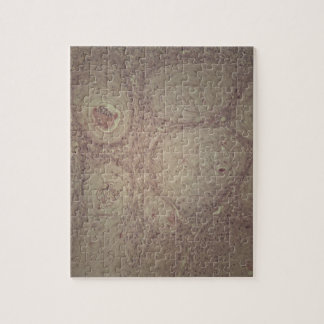 Human skin with squamous cell carcinoma jigsaw puzzle