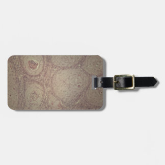 Human skin with squamous cell carcinoma luggage tag