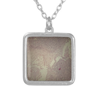 Human skin with squamous cell carcinoma silver plated necklace