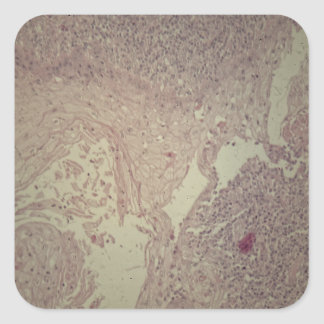 Human skin with squamous cell carcinoma square sticker