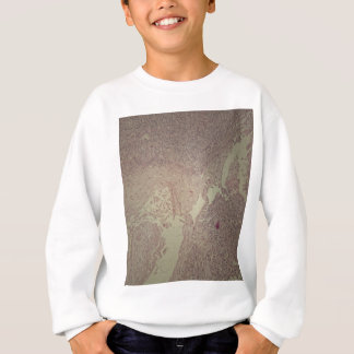Human skin with squamous cell carcinoma sweatshirt