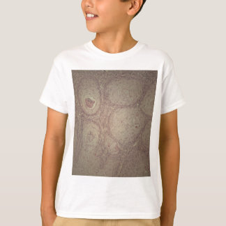 Human skin with squamous cell carcinoma T-Shirt