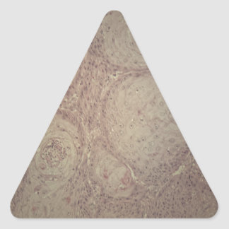 Human skin with squamous cell carcinoma triangle sticker