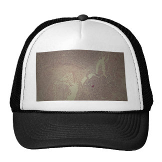 Human skin with squamous cell carcinoma trucker hat