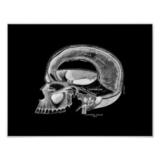 Human Skull Anatomy in Black and White Print
