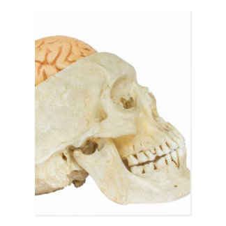 Human skull with brains postcard
