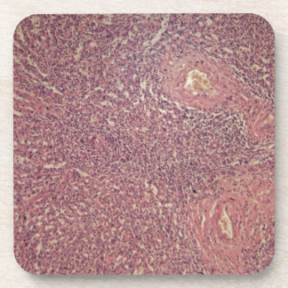 Human spleen with chronic myelogenous leukemia beverage coaster