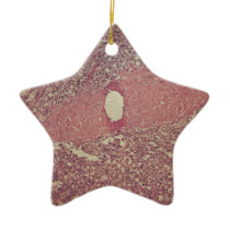 Human spleen with chronic myelogenous leukemia ceramic ornament