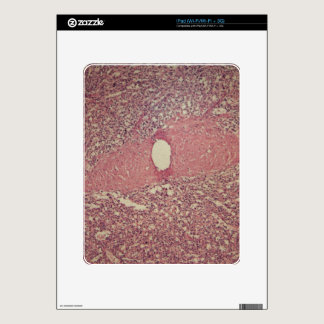 Human spleen with chronic myelogenous leukemia decal for iPad