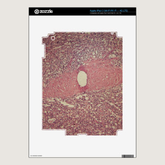 Human spleen with chronic myelogenous leukemia decal for iPad 3