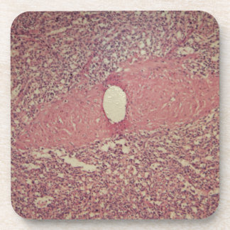 Human spleen with chronic myelogenous leukemia drink coaster