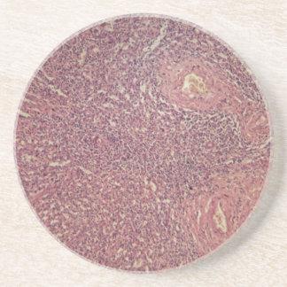 Human spleen with chronic myelogenous leukemia drink coaster