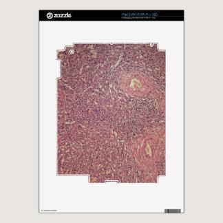 Human spleen with chronic myelogenous leukemia iPad 2 decals