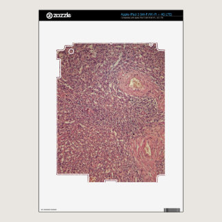 Human spleen with chronic myelogenous leukemia iPad 3 skin