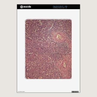 Human spleen with chronic myelogenous leukemia iPad decal