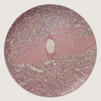 Human spleen with chronic myelogenous leukemia melamine plate