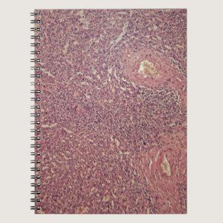 Human spleen with chronic myelogenous leukemia notebook